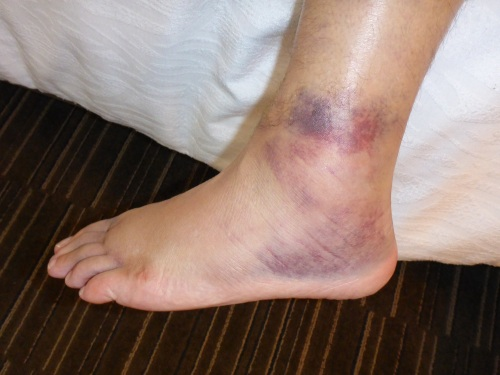 Anthony's sore and swollen ankle - red and blue all around